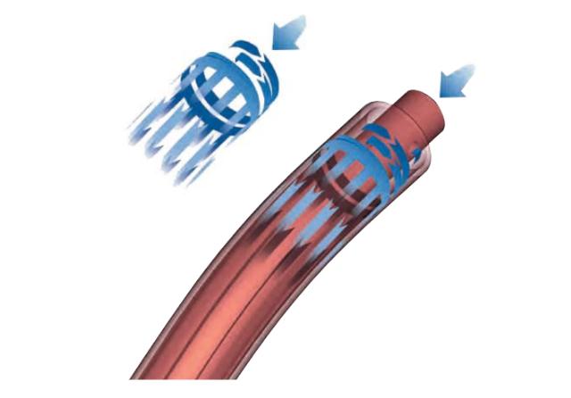 Tecnología patentada caudal de gas